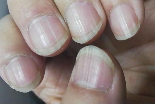 指甲上的月牙和竖纹是什么?细数指甲出现的各种疾病症状
