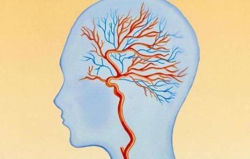 脑供血不足的原因及症状有哪些?如何预防脑供血不足