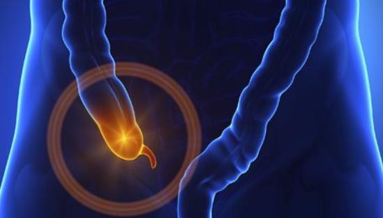 阑尾炎的症状及原因有哪些?患上阑尾炎要注意什么