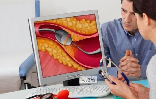 支气管扩张有哪些症状,支气管扩张怎么办(注意事项)